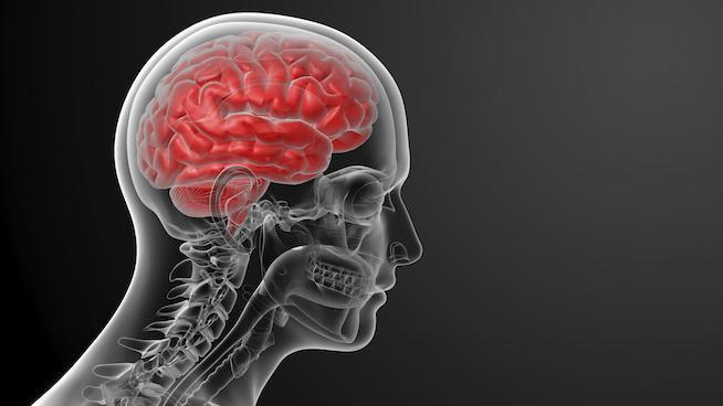Human+brain+X+ray